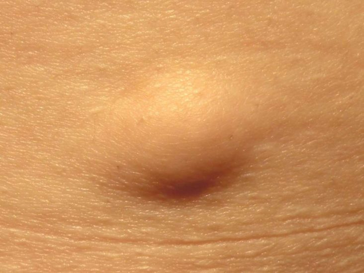 the meaning of papilloma