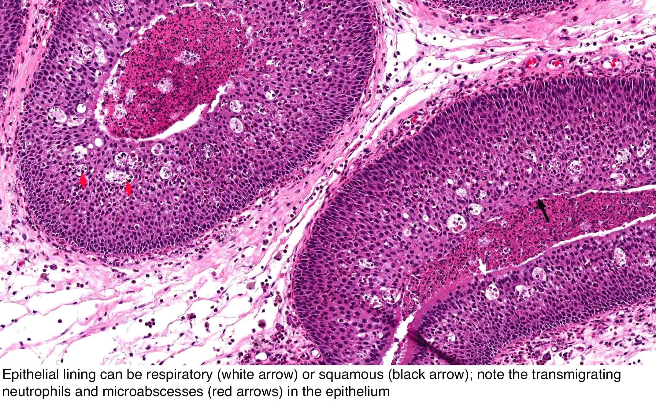 papilloma nasal cavity icd 10 condilom sau arsură
