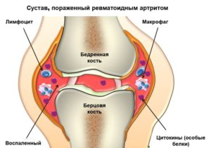 preparate pentru tratamentul stomatitei și helmintiaselor