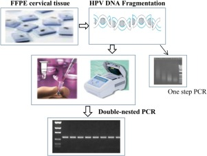 human papillomavirus pcr intraductal papilloma and dcis
