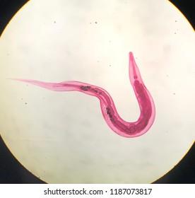 semne de viermi rotunzi în corp viermi cum să definească oamenii