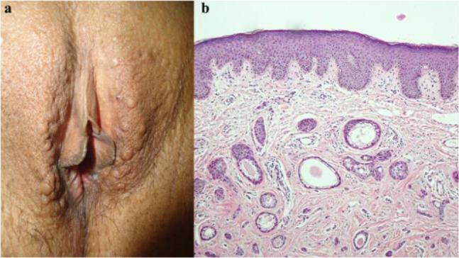 vestibular papillomatosis histology trece în revistă tratamentul verucilor genitale