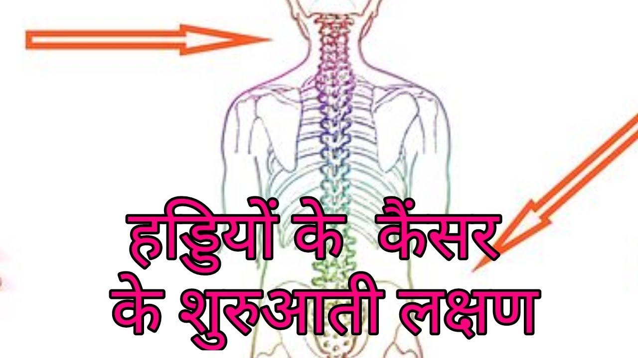 Colorectal cancer ke lakshan. Papillomas how to cure
