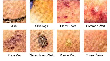 virusul papiloma uman ce să facă