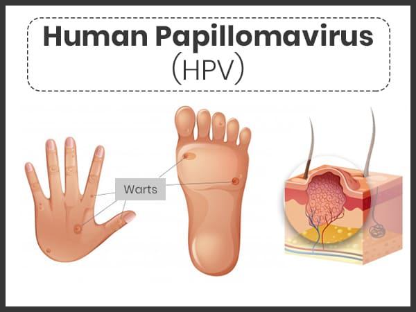 human papilloma virus treat