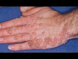 ce boală cauzează omul inelar