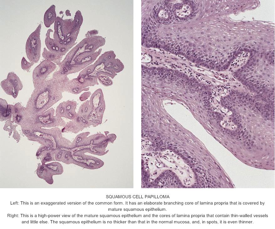 laryngeal squamous papilloma pathology