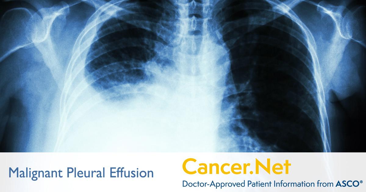 metastatic cancer pleural effusion de parcă ar fi umanizați