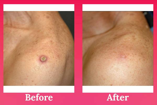neck papilloma removal)