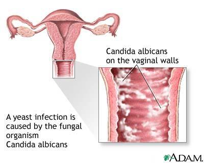 negi genitale la intrarea în vagin