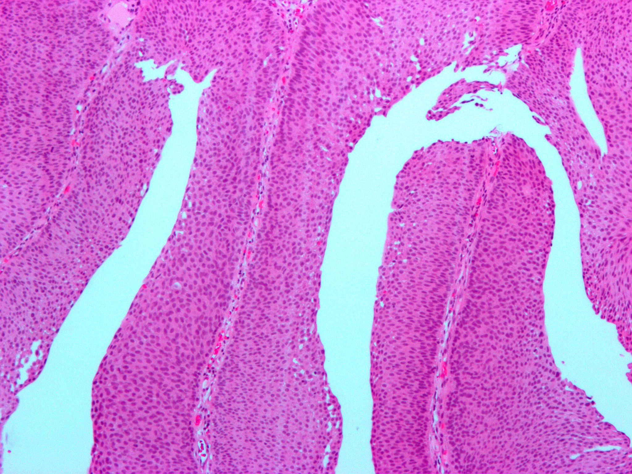 papillary urothelial cell proliferation cum să scapi de gândurile paraziților