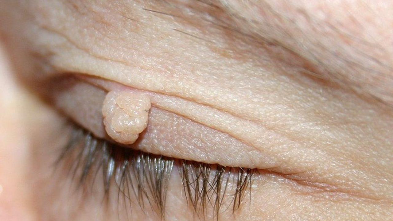 hpv causes thrush detoxifiere de colon se curăță plus