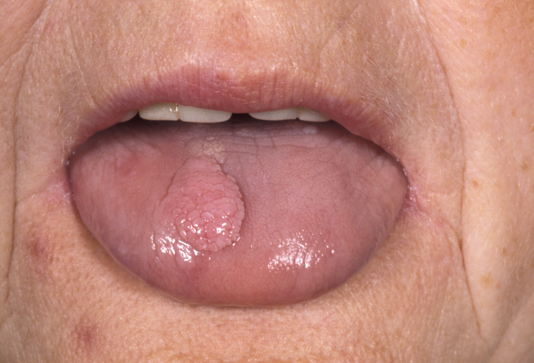 papilloma lump in mouth