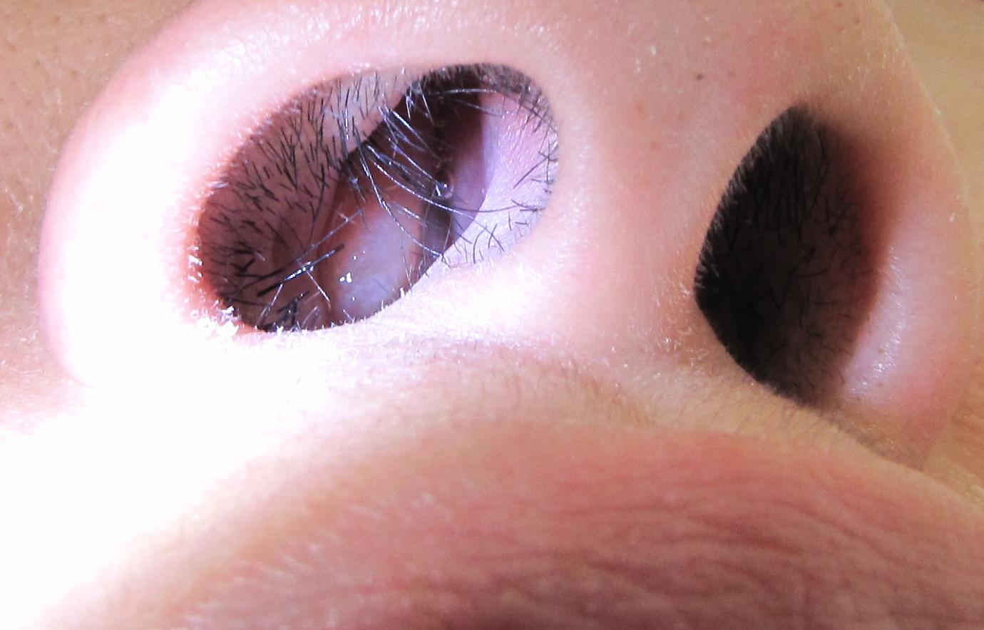 papilloma nasal icd 10