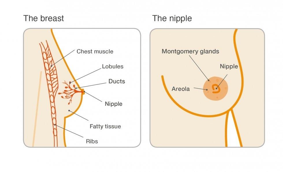 papilloma tumor brust