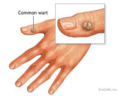 papilloma virus nell uomo sintomi tratamentul verucilor genitale penza