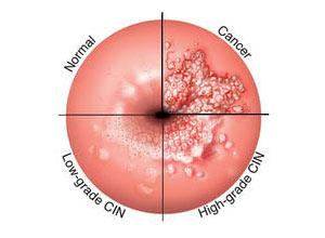 Papilloma virus terapia uomo Papilloma virus rischi per l uomo