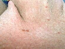 papilloma virus was ist das recidiva de giardioza