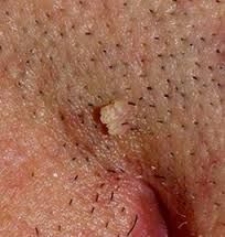 papilomele unei alunițe pe gât