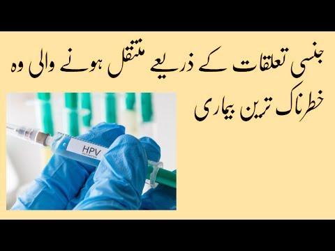 papillomas in urdu