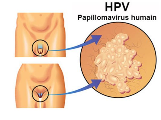 Din cauza problemelor legate de erecția de chlamydia, Papillomavirus symptomes femmes