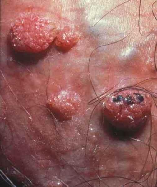 papillomavirus verrue genitale