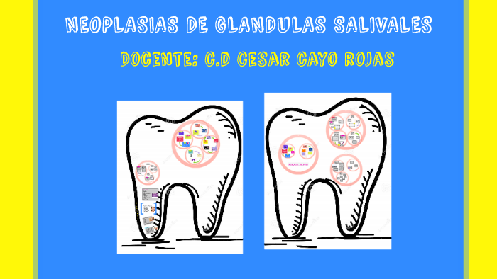 papiloma ductal glandulas salivales papillomaviridae que es