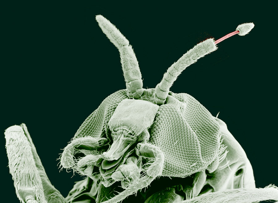 paraziti onchocerca etapele verucilor genitale