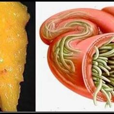 cum să tratezi viermii la oameni sinonasal papilloma p16