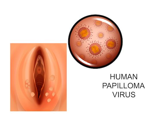 Hpv u muzu priznaky. Hpv priznaky u muzu. Prostata microflora cocci analni sex