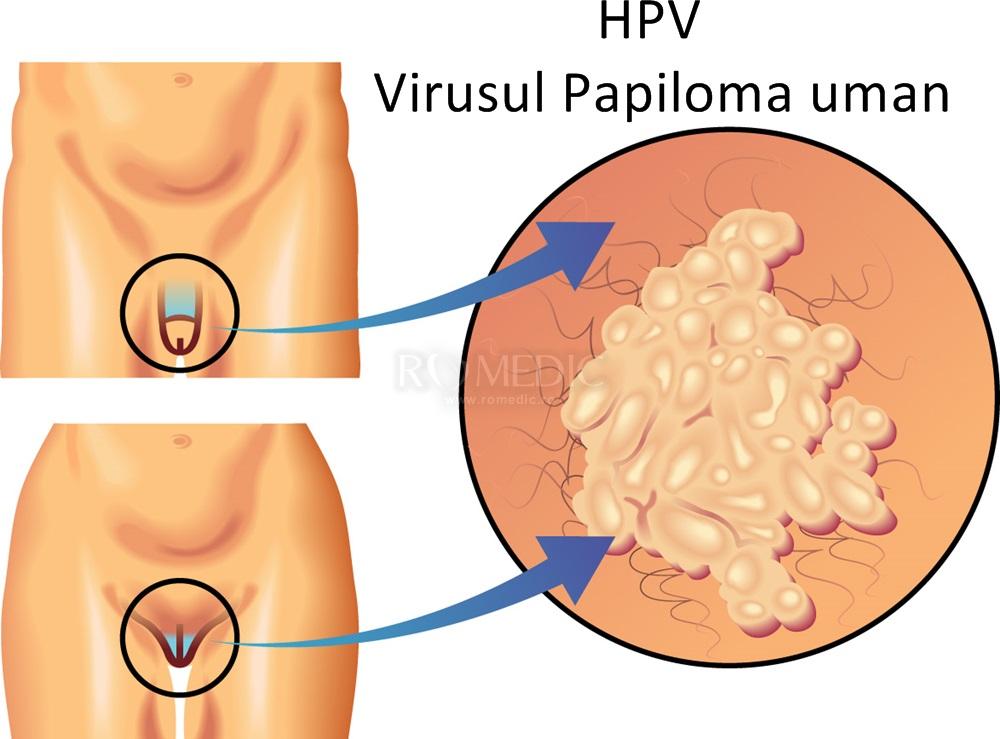 intestinele de detoxifiere în mod natural condiloame cum se vindecă