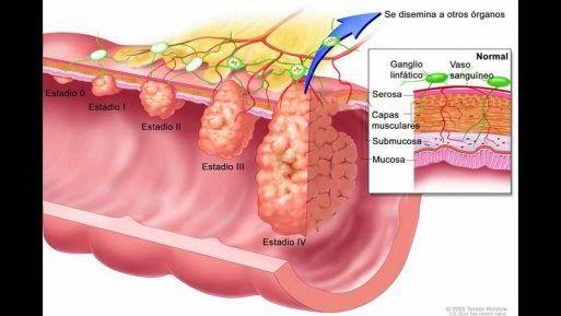 que es el cancer de colon