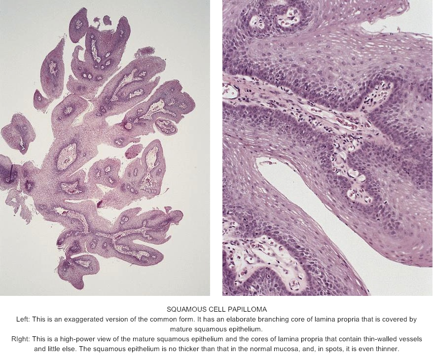 squamous papilloma dysplasia hpv cancer risk in males