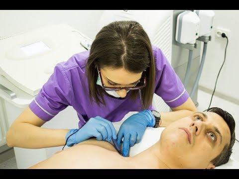 tratament cu papiloame novocaine pete în corp cu giardioză