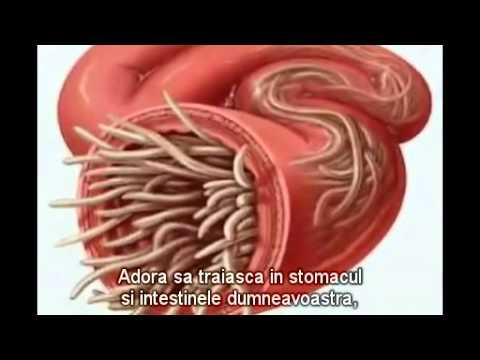 tratamentul paraziților în stomac