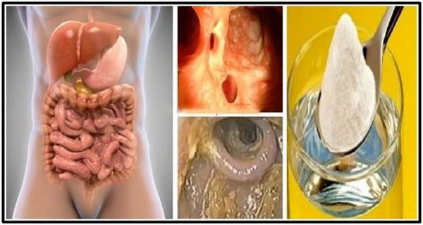 ulei de ricin de detoxie colon