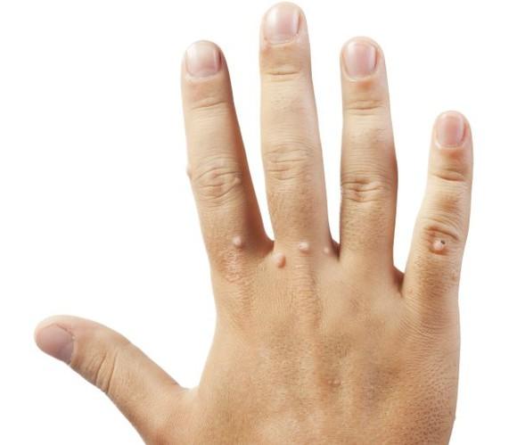 verucă la încheietura mâinii viermi tip viermi pentru viermi
