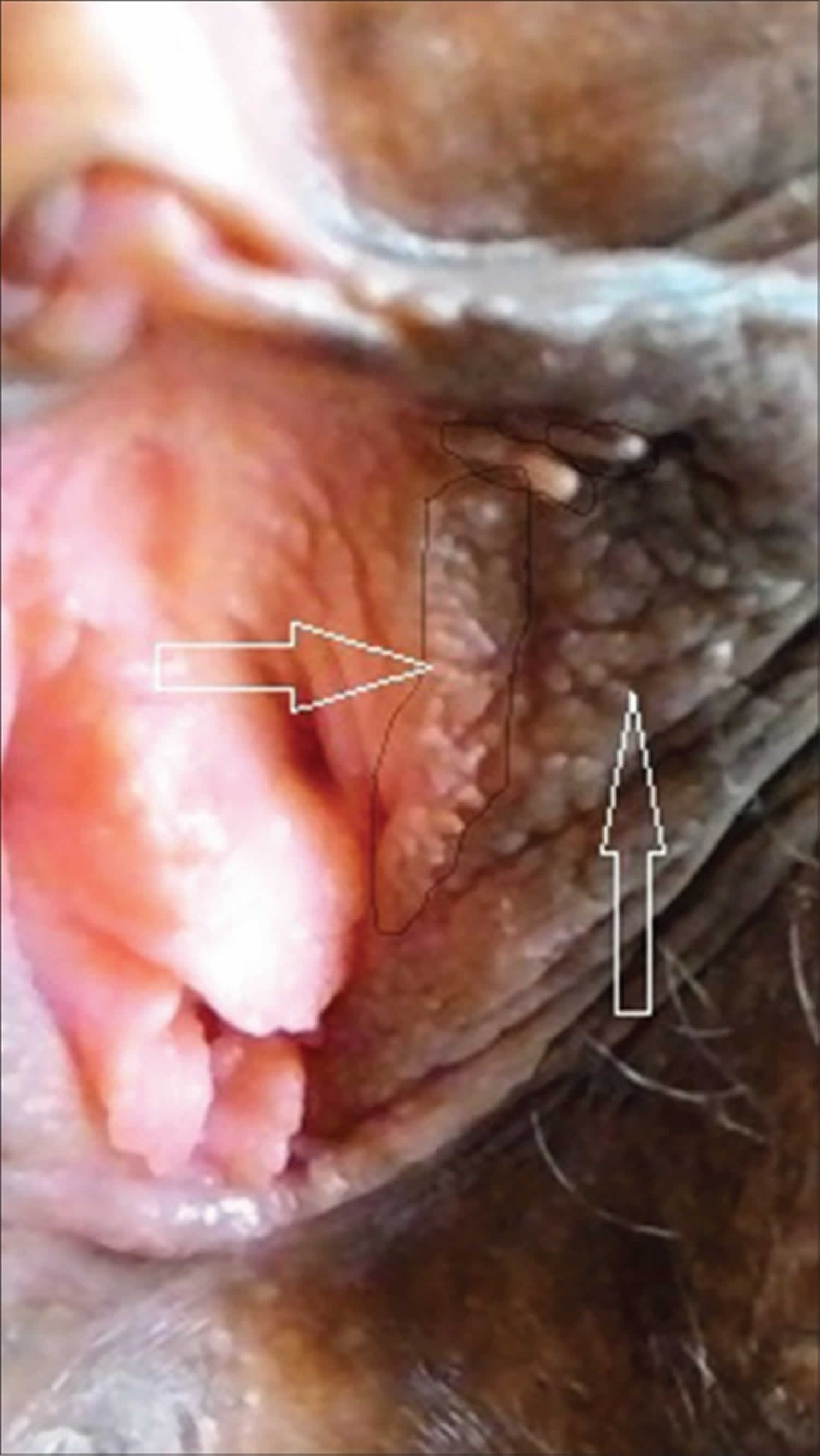 paraziți vindecători 1 comprimat tratamentul ulcerelor parazitare