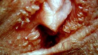 tratamentul helmintiazei la adulți dieta de detoxifiere pentru ficat