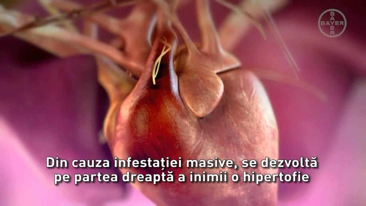 medicamente parazitare și medicamente pentru om