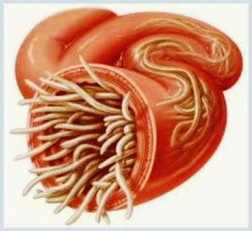viermisori intestinali simptome