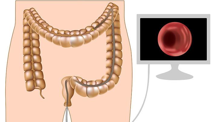 poate giardia cauza creșterea în greutate papilloma virus tempi di guarigione