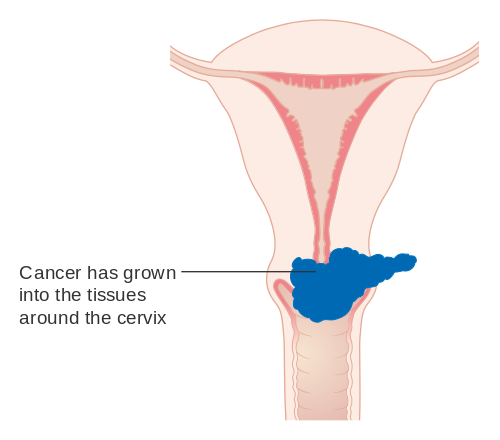 Warts and ovarian cancer, Wart virus changes. Ovarian cancer history in family