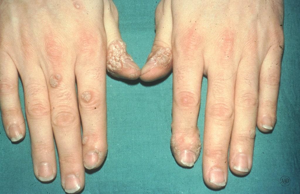 warts on hands eczema papiloma neden yaranir