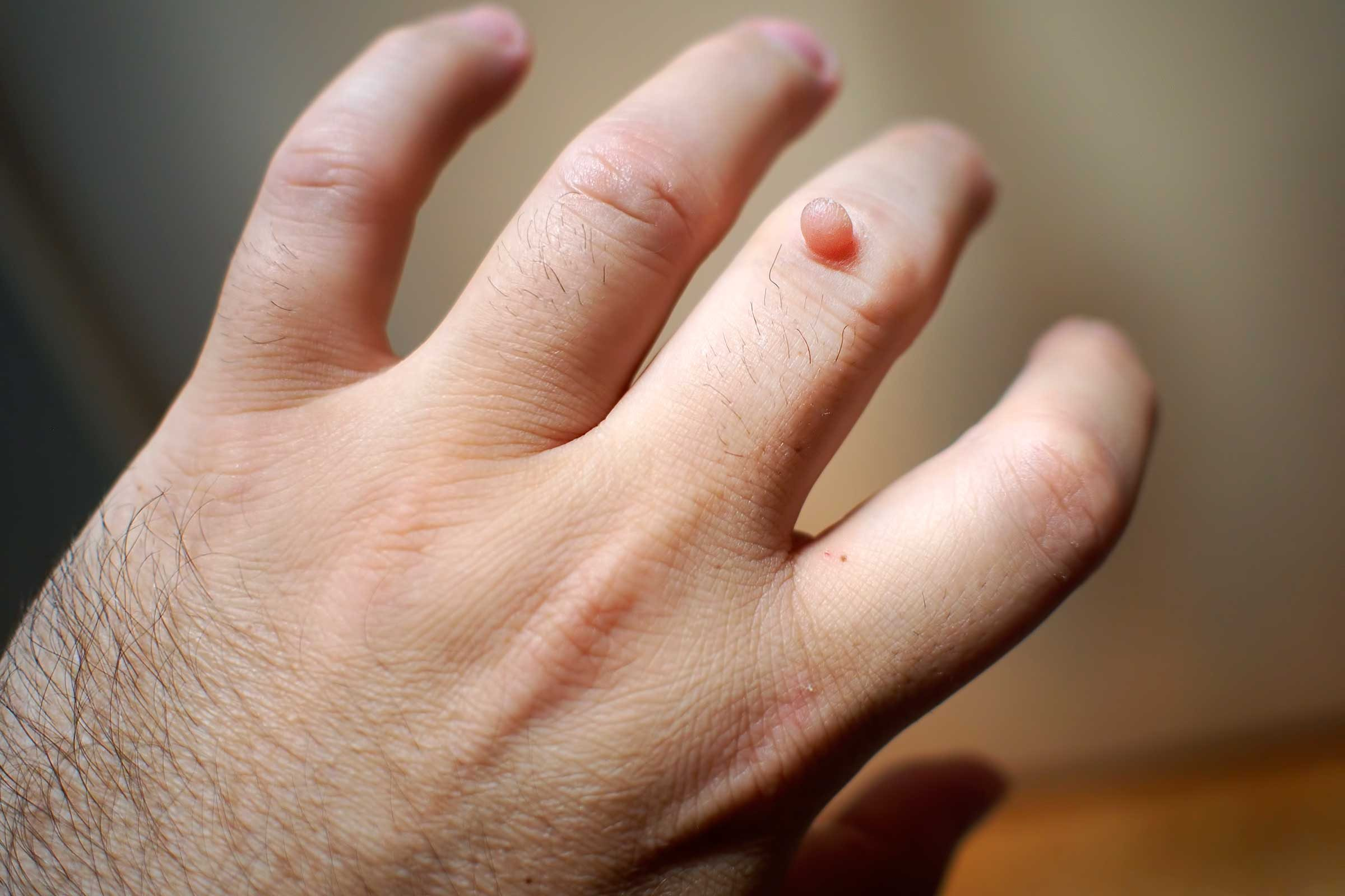 warts on hands will not go away