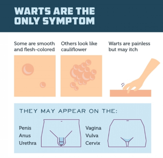 hpv warts causes