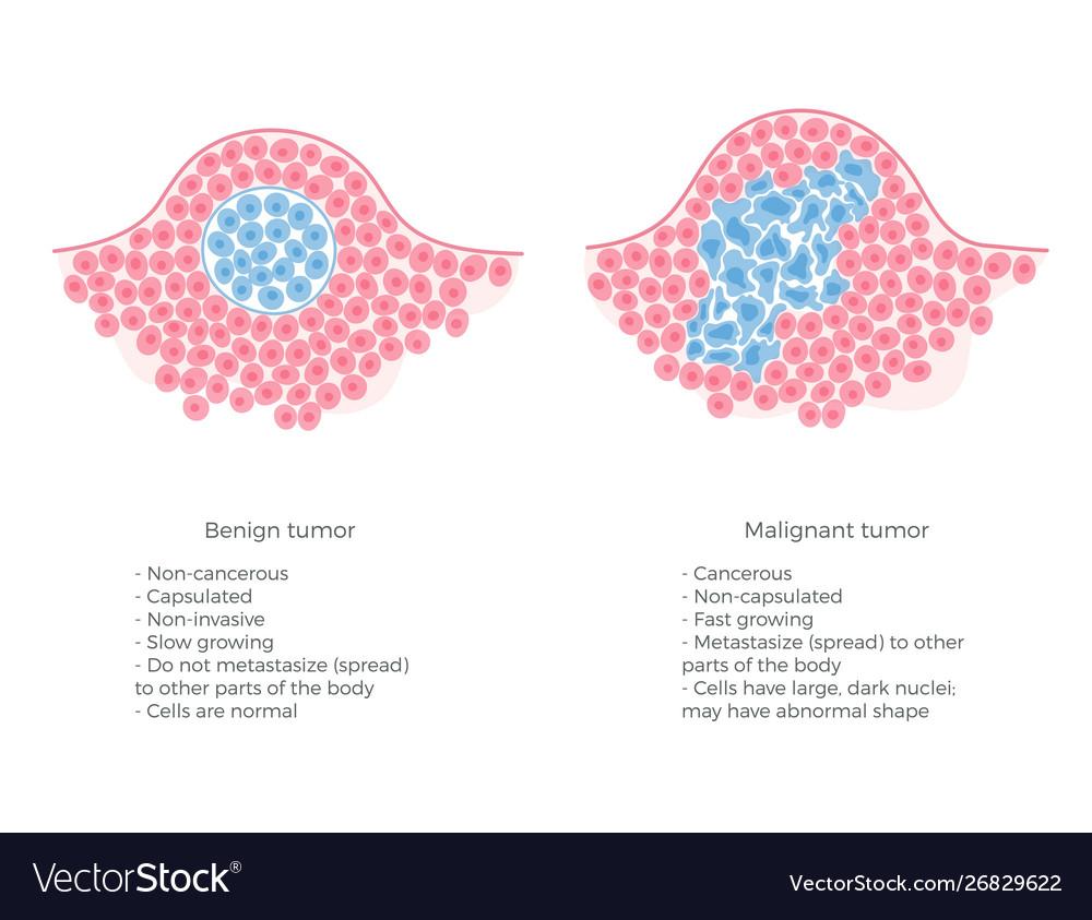 Malign cancer tumor. Cancerul - tumori maligne