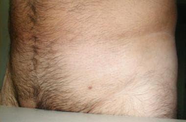 Cum să eliminați condiloamele uretrei bărbaților, Cum să eliminați negii genitali din uretra