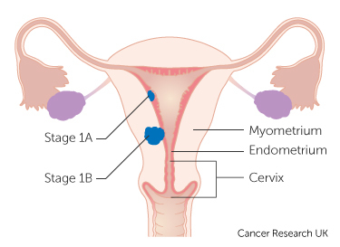 aggressive cancer in womb can hpv cause pancreatic cancer
