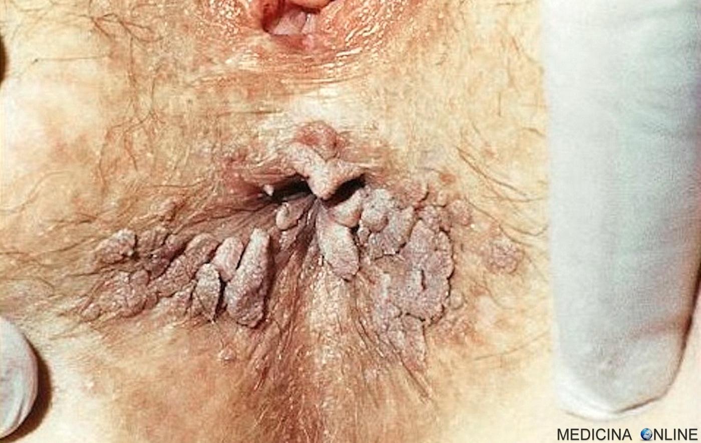 cancer colon sigmoide genital human papilloma virus